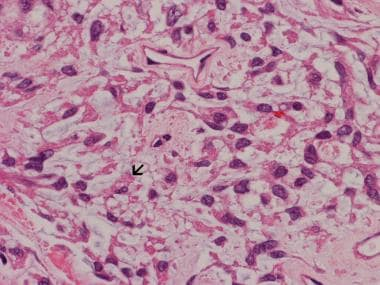 Image 21: In this chordoid meningioma, the backgro