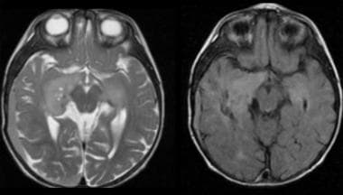 The deeply situated desmoplastic astrocytoma can b