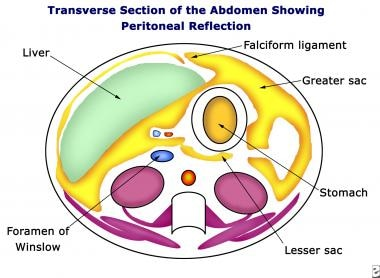 Pneumoperitoneum. Diagram of transverse section of