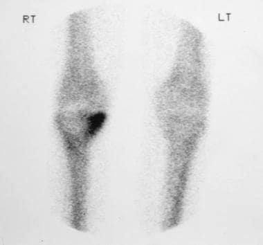 Radionuclide bone scan of the right knee joint in