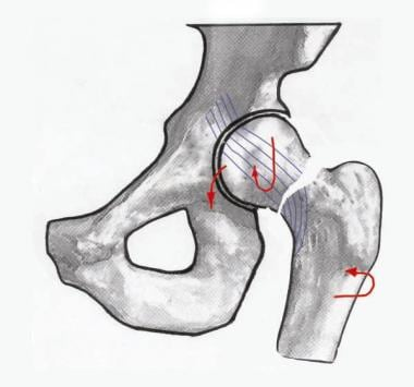 Image depicting a Garden III hip fracture.