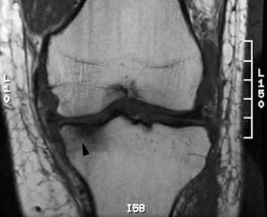 Coronal T1-weighted image of the knee demonstrates