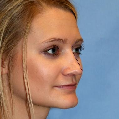 The oblique view and the brow-tip aesthetic line.