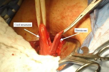 Open inguinal hernia repair. Hernia sac separated