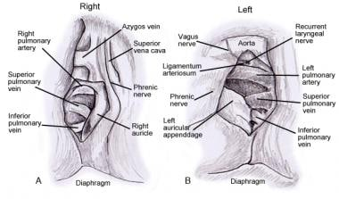Hilar anatomy (right and left).