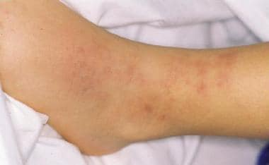 Tender erythematous nodules in cutaneous polyarter