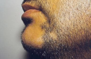 Alopecia areata affecting the beard.