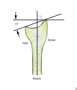 Lateral radiographic view demonstrates the volar t