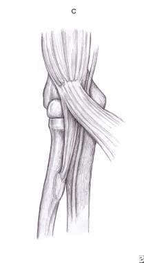 Lacertus fibrosus (bicipital aponeurosis).