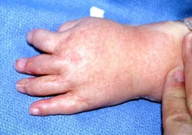 Dorsal view of left hand of patient with type II A