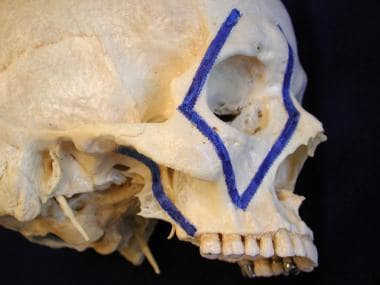 Vertical buttresses of facial skeleton.
