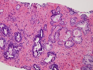 Prostate cancer. Small focus of adenocarcinoma on