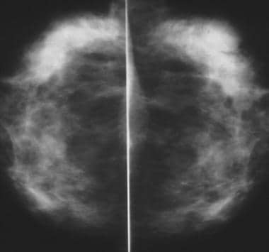Craniocaudal mammograms obtained 1 year apart demo
