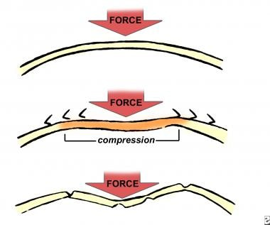 The compressive force of frontal bone as the bone