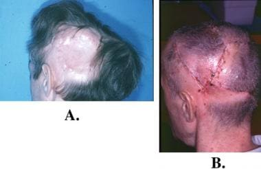 Tissue expansion. A: A large scalp wound has been