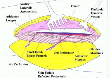 Schematic view of the completed dissection shows t