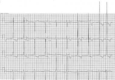 ECG of a 16-year-old with hypertrophic cardiomyopa