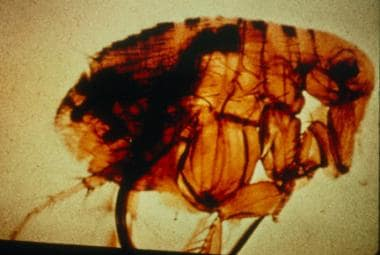 Pictured is a flea with a blocked proventriculus,