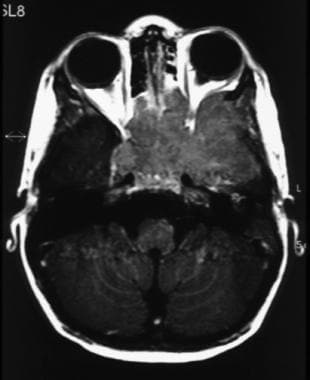 Axial MRI scan of the orbits, posterior fossa, and