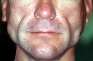 Facial HIV-associated lipodystrophy in a patient r