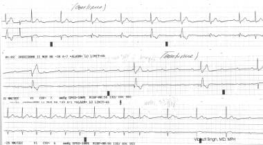 Heart block (second-degree Mobitz type II and thir
