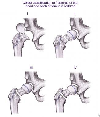Depiction of various Delbet types of proximal femo