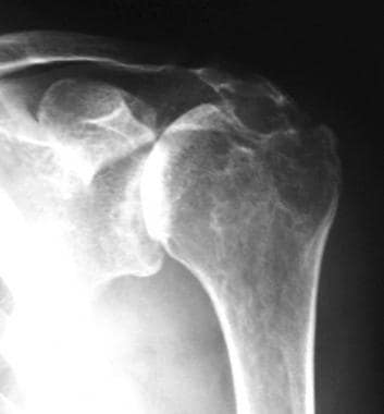 Radiograph of a severely affected joint demonstrat