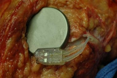 An implanted nerve stimulator. Note that the locat