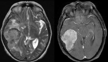 Multisequence MR images, including axial T2 and ax
