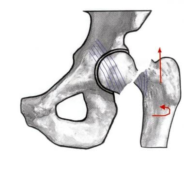 Image depicting a Garden IV hip fracture.