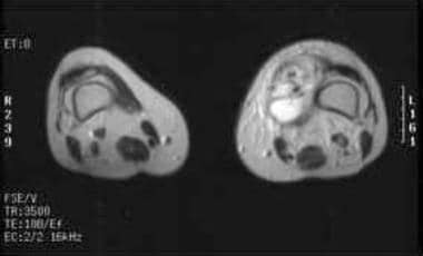 T2-weighted MRI obtained following gadolinium admi