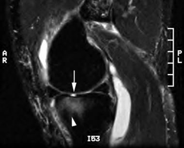 Sagittal T2-weighted image of the knee reveals an