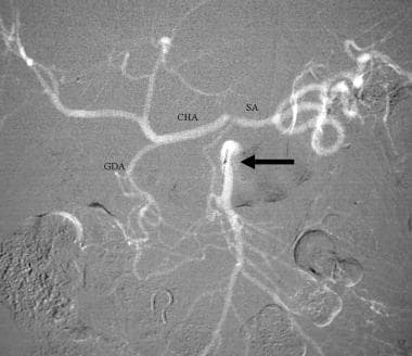 Celiac stenosis caused by median arcuate ligament