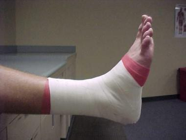 Ankle taping and bracing. Completed tape job.