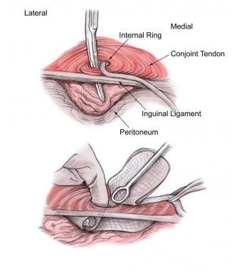 Open inguinal hernia repair. Development of preper