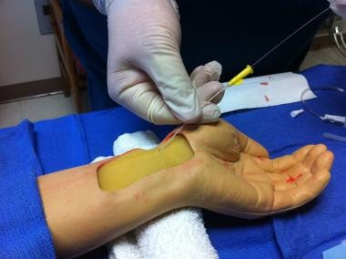 Radial artery cannulation (Seldinger). Advancement