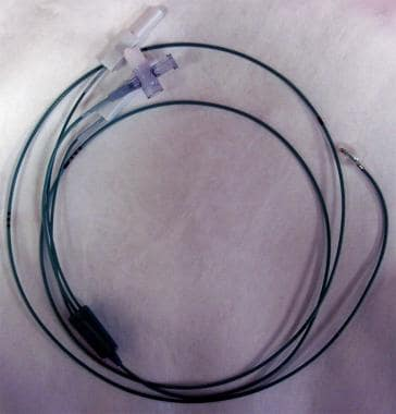 Floating catheter that follows circulation flow. I