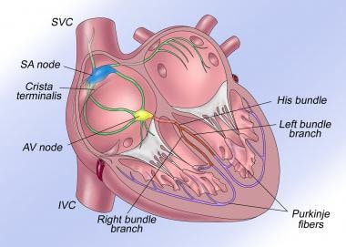 The normal cardiac conduction system is illustrate