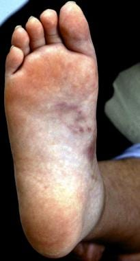 Nodules on sole of foot in cutaneous polyarteritis