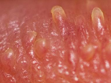 Pearly penile papules; close-up view. Courtesy of