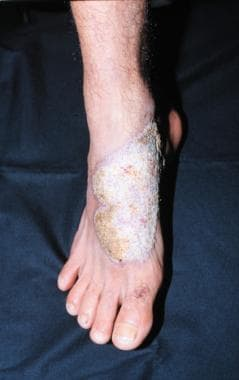 Plaque lesion on the foot. The verrucous aspect of