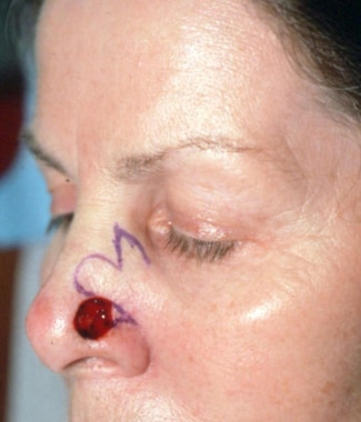 Postoperative Mohs defect over the left nasal side