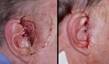 Preauricular advancement. Panel A: Defect on the h