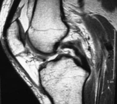 An MRI showing a torn posterior cruciate ligament