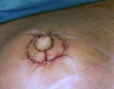 Intraoperative sequence of nipple reconstruction w