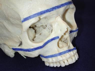 Horizontal buttresses of facial skeleton.