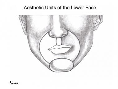Aesthetic units of the face.