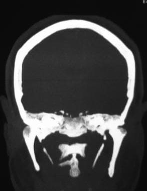 CT scan: calcification of the stylohyoid ligament.