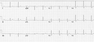 A 57-year-old with 4/10 pressurelike chest pain. I