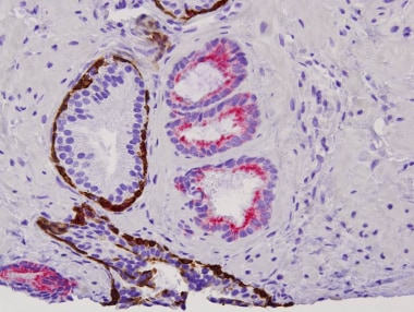 Prostate cancer. Immunohistochemical stains showin